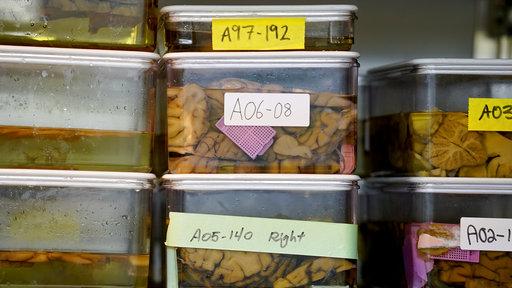 Η χοληστερίνη μπορεί να προκαλέσει Αλτσχάιμερ