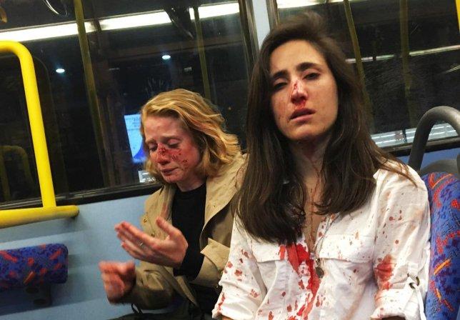 Ομοφοβική επίθεση στο Λονδίνο: Γρονθοκόπησαν γυναίκες επειδή «αρνήθηκαν να φιληθούν» – Τέσσερις συλλήψεις