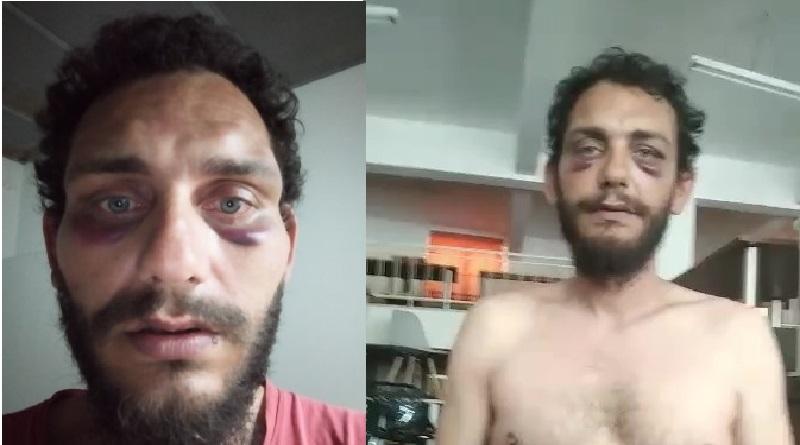 Ηράκλειο: Αστυνομική βία και ρατσισμός σε πολίτη – «Πακιστανέ κάνε στην άκρη αλλιώς θα σε γκρεμίσουμε» (Video)