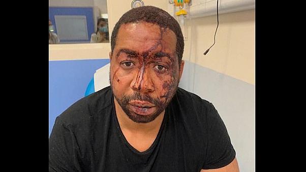 Γαλλία: Στη φυλακή οι τρεις αστυνομικοί που ξυλοκόπησαν τον μαύρο μουσικό παραγωγό