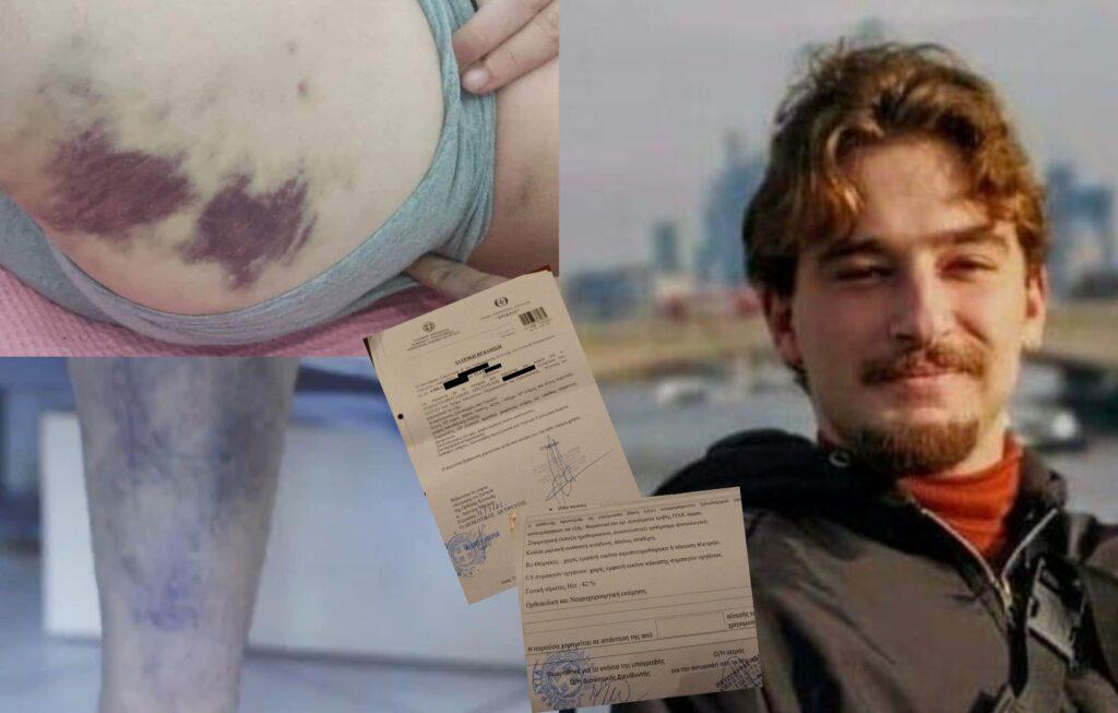 Οι ιατρικές γνωματεύσεις που αποδεικνύουν τον βασανισμό του Άρη Παπαζαχαρουδάκη (Photos)