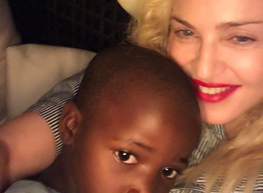 Μαλάουι: Η Μαντόνα ανοίγει το κέντρο χειρουργικών επεμβάσεων για παιδιά