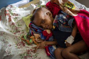 Αιθιοπία: 100.000 παιδιά στο Τιγκράι κινδυνεύουν από ακραίo υποσιτισμό (UNICEF)